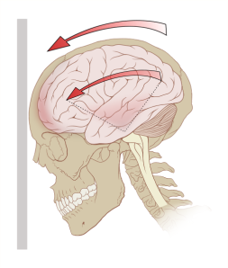509px-Concussion_mechanics.svg